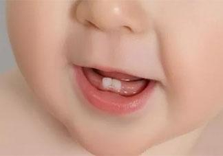 宝宝开始长牙的表现有哪些 宝宝长牙要注意什么