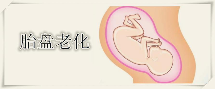 胎盘老化容易生出弱智儿吗 孕晚期哪些孕妇容易胎盘老化