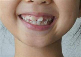 牙齿不整齐什么时候矫正最好 孩子牙齿不齐原因