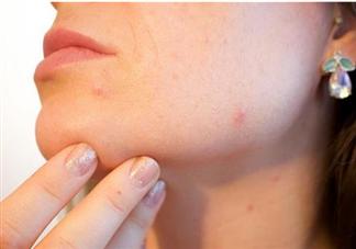 孕期容易出现什么皮肤问题 孕期常见的几大皮肤问题