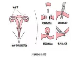女性上环后还能怀孕吗 上环后还想要小孩怎么办