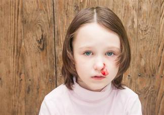 宝宝爱流鼻血是怎么回事 什么样的鼻血要当心
