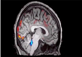 人类睡觉时大脑的清洗过程是怎样的 人类睡觉时大脑的清洗过程如何进行
