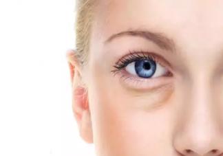 眼袋大的原因是什么 什么情况下眼袋要做手术