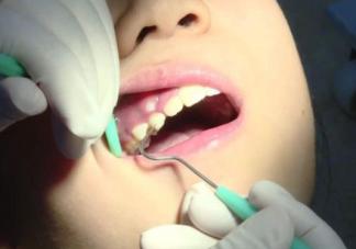 婴儿口腔护理什么时候开始好 婴儿口腔护理操作流程是什么