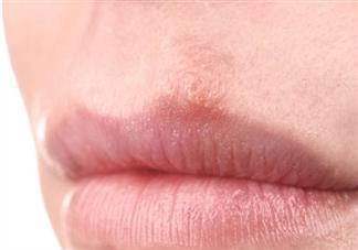 冬天嘴唇干裂是缺少维生素吗 冬天嘴唇干裂怎么办