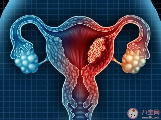 哪些人更容易患宫颈癌 宫颈癌筛查多久做一次
