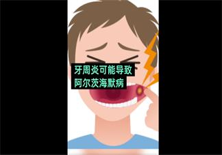 牙周炎可能导致阿尔茨海默病是怎么回事 牙周炎会引发阿尔兹海默症吗