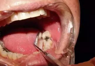 早上口腔发苦是怎么回事  怎么正确护理口腔