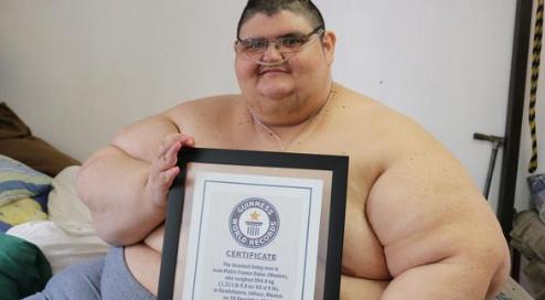 世界最胖的人是多少斤 世界最胖的人减重660斤是真的吗