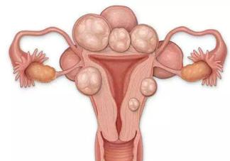 子宫肌瘤哪几种情况需要手术切除 子宫肌瘤需要开刀的几种情况