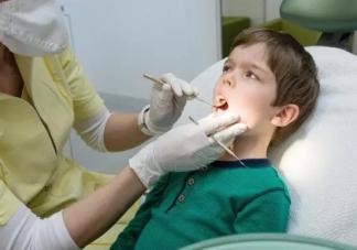 牙结石对牙齿会有什么影响 每天刷牙为什么还会长牙结石