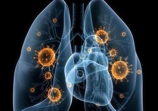 武汉不明原因肺炎病原体是什么病毒 武汉不明原因肺炎病原体新型冠状病毒会传染吗