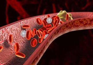 血管堵塞吃什么食物好 哪些食物会给血管添堵