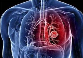 新型冠状病毒感染了一定会发热吗 新型冠状病毒前期的症状有哪些