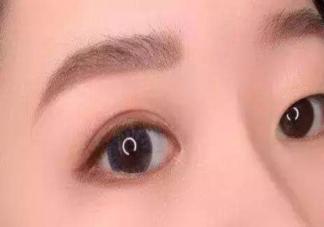 割了双眼皮可以遗传给孩子吗 割双眼皮会有风险吗