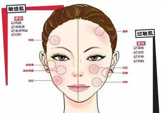 过敏肌和敏感肌有什么不同 怎么区别过敏肌和敏感肌