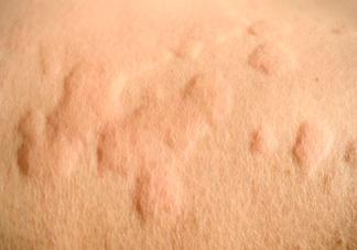 哺乳期为什么会得急性荨麻疹 哺乳期得了急性荨麻疹怎么办