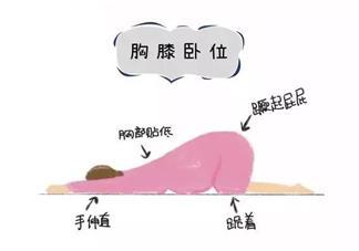 胎位不正臀位怎么办 胎位不正臀位怎么调整过来