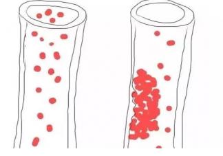 血脂稠是什么原因造成的  血脂稠吃什么食物好