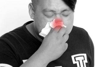 怎么防止过敏性鼻炎的反复发作 防止过敏性鼻炎的反复发作的方法