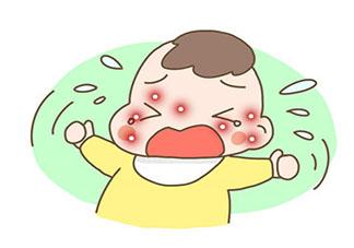 孩子抓破蚊子包有什么危害 孩子蚊子包很痒怎么办