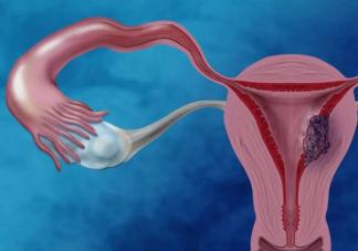 子宫衰老有什么症状 如何减缓子宫衰老的速度
