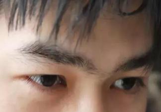 眼皮浮肿是怎么回事 眼皮浮肿和什么有关