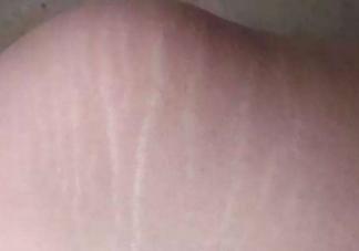 青春期生长纹如何消除 青春期为什么会长生长纹
