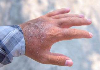孕期手脱皮是不是血热造成的 孕妇血热引起的手脱皮如何解决