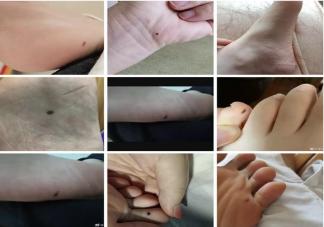 脚底有痣一定要切除吗 恶性黑色素瘤哪些部位容易多发