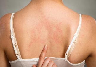 长湿疹是因为湿气重吗 为什么夏季湿疹容易加重