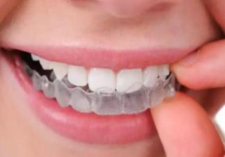 牙洞补牙要戴牙套吗 什么样的补牙情况要戴牙套
