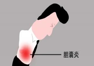 胆囊炎是怎么引起的 吃槟榔会胆囊炎发作吗