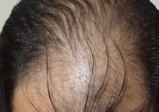 男性秃头与性生活过度有关系吗 男性秃头是什么原因造成的
