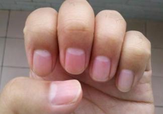指甲上月牙越多代表身体越健康吗 月牙多少和健康有关系吗