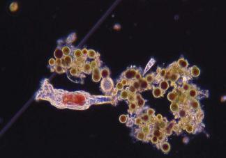 食脑虫是什么 食脑虫生长在什么地方