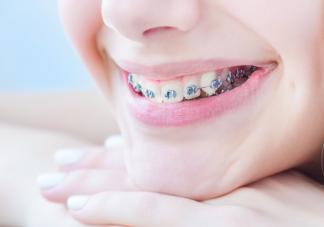 戴牙套期间吃什么食物最好 戴牙套后怎么吃