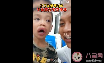 男孩吃葡萄过敏怎么回事 孩子过敏了怎么处理