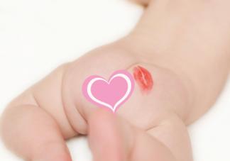 宝宝臀纹不对称一定是有问题吗 臀纹不对称是不是髋关节发育不良