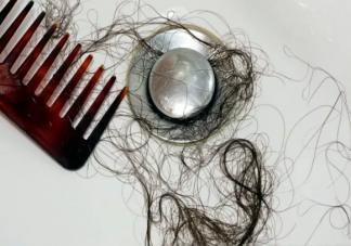 年轻男生掉头发是什么原因引起的 掉头发吃什么食物能恢复