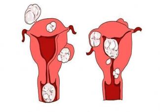 子宫肌瘤和子宫腺肌瘤有什么区别 子宫肌瘤和子宫腺肌瘤一样吗