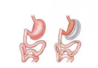 患了糖尿病进行切胃手术有用吗 切胃手术会不会导致身体后遗症