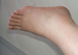 孕期腿脚水肿怎么缓解不适 缓解腿脚水肿的方法