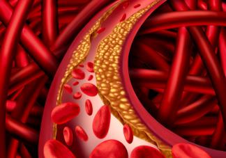血管堵了输液冲一冲管用吗 血管堵塞输液有用吗