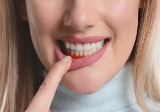 我国九成以上成年人有牙周疾病是真的吗 成年人得牙周疾病的主要原因是什么
