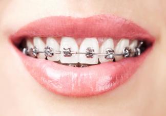 矫正牙齿对脸型的影响大吗 哪几类人牙齿矫正脸型变化最大