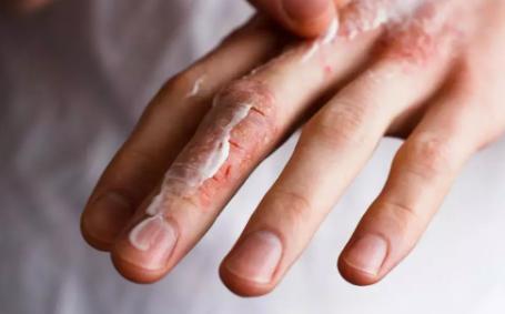 儿科医生每天洗手超100次是为什么 洗手次数太多的危害