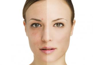 脸上长黄褐斑是皮肤早衰了吗 黄褐斑的正规治疗方法是什么