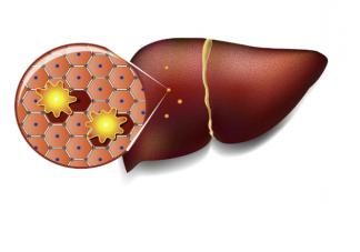 靠走路可以治愈脂肪肝吗 日常如何预防与调理脂肪肝